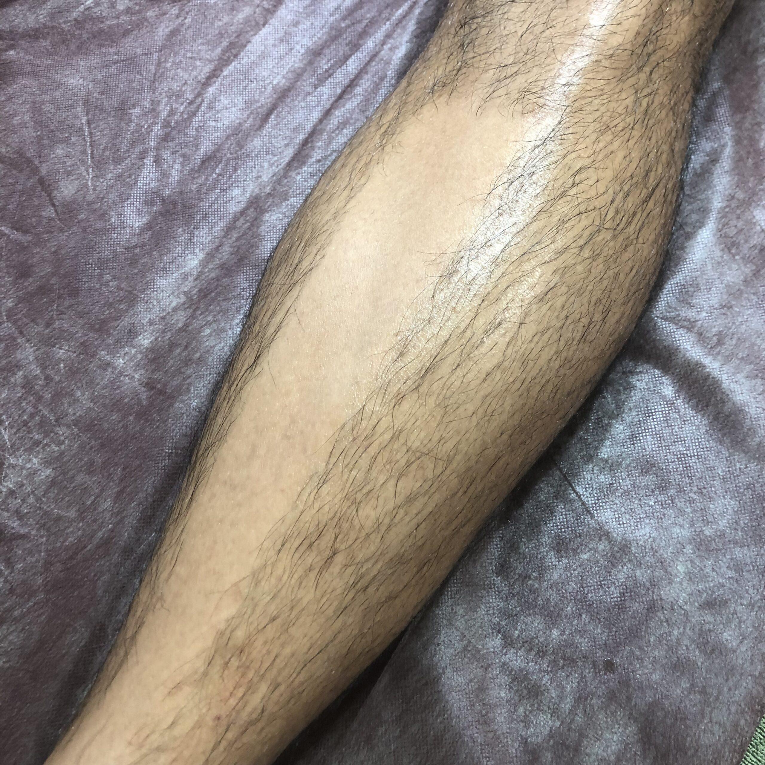 Sowhat足のダブル脱毛